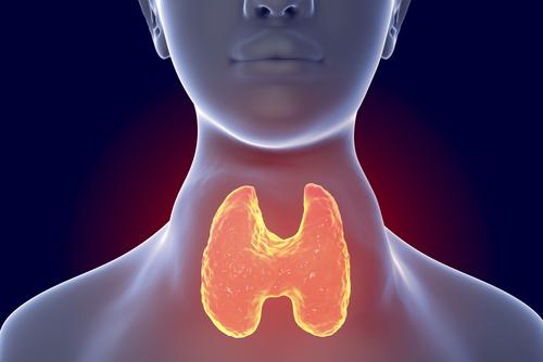 Aumento da tireoide: conheça as causas